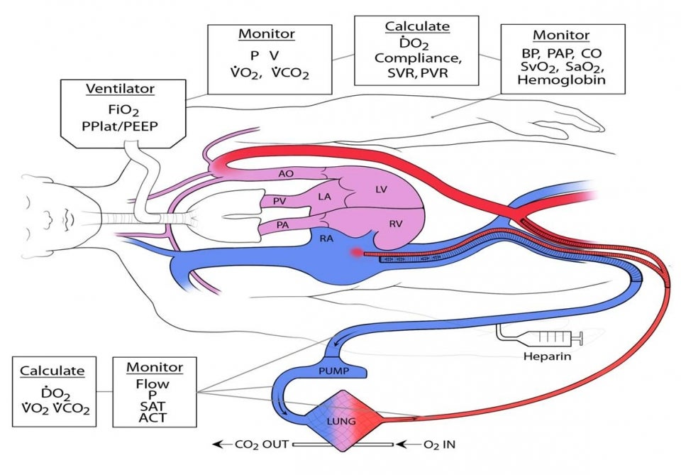 ECMO schematic
